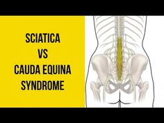 Distinguish the difference between sciatica and cauda equina syndrome and the red flags to look for when this turns into a medical emergency. Chronic Sciatica, Sciatica Pain Relief, Sciatica Exercises, Sciatic Pain, Back Pain Relief, Sciatic Nerve, Upper Back Pain Exercises, Back Pain Quotes, Arthritis