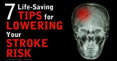 New research shows that women without hypertension consuming the most potassium have 21 percent reduced risk of suffering from stroke. http://articles.mercola.com/sites/articles/archive/2014/09/22/potassium-lowers-stroke-risk.aspx