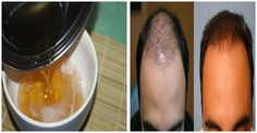 He Mixed 3 Ingredients and Applied to His Hair! The Results After 7 Days…Unbelievable!
