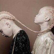 Moda: La #bellezza #unica delle gemelle albine (link: http://ift.tt/2nNPoUL )