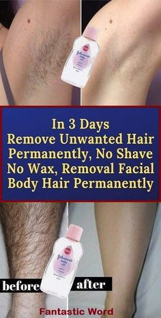Upper Lip Hair Removal, Chin Hair Removal, Permanent Facial Hair Removal, Remove Unwanted Facial Hair, Facial Waxing, Hair Removal Remedies, Unwanted Hair, Natural Hair Removal, Hair Removal Diy
