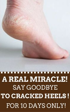 A Real Miracle! Say Goodbye To Cracked Heels! For 10 Days Only!