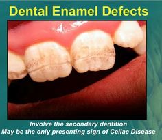 Celiac disease is often first spotted by your dentist as the only presenting sign is dental enamel defects and discoloration. www.periodontalhealth.com