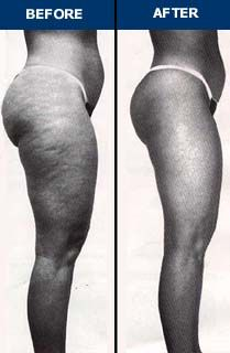 There are many ways of getting rid of cellulite. Some of them good, some bad and some totally useless. Cellulite not only looks ugly it is fraught with health hazards. Here are some of the effective treatment methods Cellulite Cream, Reduce Cellulite, Anti Cellulite, Cellulite Scrub, Cellulite Exercises, Cellulite Remedies, Do Exercise, Regular Exercise, Excercise