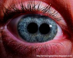 AMAZING REALITIES: Pupula Duplex-An Extremely Rare Condition