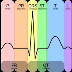 ¿Qué tanto recuerdas del Electrocardiograma? Aquí te dejamos un repaso rápido sobre este tema + VIDEO de las principales arritmias.