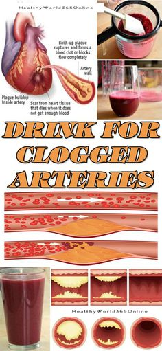 THIS IS A DRINK FOR CLOGGED ARTERIES-HOME REMEDIES!