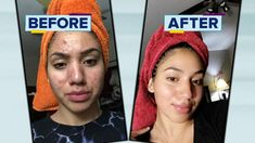 Natural Acne Remedies Teen shares how she cleared her severe acne using cheap products - ABC News - Karina Banuelos' striking before-and-after photos went viral. Cystic Acne Remedies, Natural Acne Remedies, Home Remedies For Acne, Skin Care Remedies, Scar Remedies, Acne Skin, Acne Scars, Acne Rosacea, Acne Face