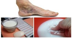 Magical Recipe for Varicose Veins and Thrombosis with Only 2 Simple Ingredients. When swollen varicose veins prevent blood flow to the heart, blood starts to. Varicose Vein Removal, Varicose Vein Remedy, Varicose Veins, Foot Remedies, Health Remedies, Magic Recipe, Wonderful Recipe, Natural Home Remedies, Natural Treatments