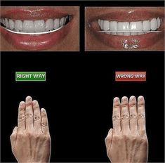 Funny jokes and quotes about teeth and dentists Dental Meme, Dentist Jokes, Dental Fun Facts, Dental Teeth, Dental Hygiene School, Dental Procedures, Dental Anatomy, Veneers Teeth, Dental Health