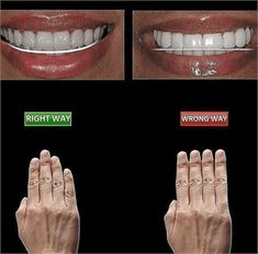 Funny jokes and quotes about teeth and dentists Dentist Jokes, Dental Humor, Dental Teeth, Dental Care, Dental Hygiene School, Dental Pictures, Dental Videos, Dental Anatomy, Veneers Teeth