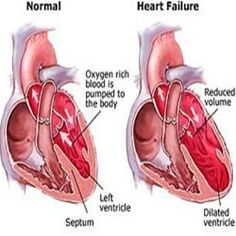 Five Effective Natural Cures For Congestive Heart Failure