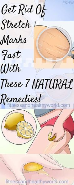 GET RID OF STRETCH MARKS FAST WITH THESE 7 NATURAL REMEDIES!