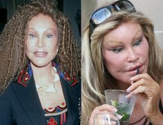 Celebrity Plastic Surgery Before and After: Jocelyn Wildenstein Plastic Surgery Before and After Facelift and Lips Injections...Bizzare
