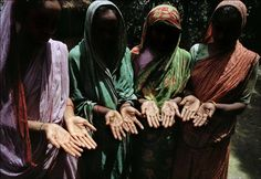 BANGLADESH. Khulna. Jessore. Kamarpara village. Four village women show the telltale black marks on the palms of their hands of arsenic poisoning. Their only source of fresh water, a pump, is painted red to show that the water is contaminated with arsenic. 2000.