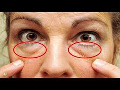 Cómo quitar las Bolsas de los Ojos en 20 Minutos ¡Los Resultados te Sorprenderán! - YouTube