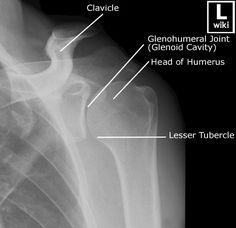 Radiology Student, Radiology Imaging, Medical Imaging, Nursing Tips, Nursing Notes, Upper Limb Anatomy, Shoulder Anatomy, Advanced Nursing, Radiologic Technology