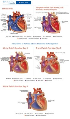 TGA Transposition of the Great Arteries and Arterial Switch Operation  - This is the heart defect that our son had.
