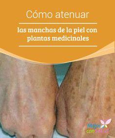 Cómo atenuar las manchas de la piel con plantas medicinales  El aceite esencial de sándalo nos puede ayudar a tratar diferentes problemas de hiperpigmentación, así como a reducir la apariencia de las manchas y cicatrices del acné