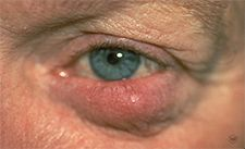 Ocular rosacea: When rosacea develops in the eyes, it can cause redness and a stye.    RosaceaNet, an American Academy of Dermatology website (http://www.skincarephysicians.com/rosaceanet/index.html) is an excellent resource for #rosacea information.