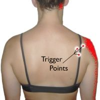 Infraspinatus Trigger Points: The Magicians of Shoulder Pain | TriggerPointTherapist.com