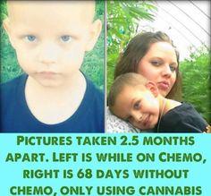 Colorado mom treats son's cancer with medical marijuana - NY Daily ...