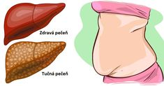 These 6 Warning Signs Show That Your Liver is Full of Toxins - I Love Natural Healing-If not for the liver, toxins may accumulate in your body and cause numerous health problems.Here are 6 warning signs show that your liver is full of toxins Healthy Detox, Healthy Tips, Healthy Food, Bebidas Detox, Liver Cleanse, Cleanse Diet, Soup Cleanse, Liver Detoxification, Best Oral