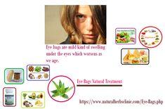 Eye Bags Natural Treatment
