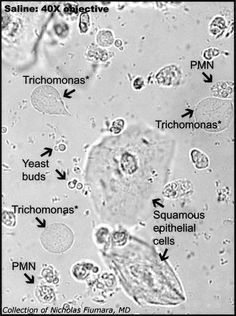 vaginal wet prep microscope 400x - Google Search