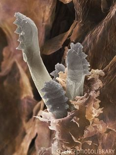 1. To Reiterate: This Is Demodex Folliculorum, The Anus-less Mite That Eats Your Face Grease, And Its Death Poop Can Give You Rosacea