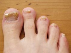 Infecciones Hongos - Home Remedies for Fingernail Fungus #fungus #nailfungus Investigadora Médica, Nutricionista, Consultora de Salud y Ex Paciente de Infecciones por Hongos Le Enseña