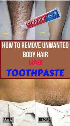 Today I will share an amazing unwanted hair removal treatment with which you can remove facial and body hair permanently. Get Rid Of Blackheads, Clean Face, Acne Scars, Facial Hair, Teeth Whitening, Hair Removal, Clear Skin, Hair Loss, Beauty Hacks
