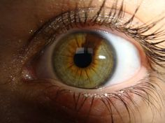 What is heterochromia & is it rare?