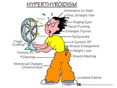 Hyperthyroidism- Graves' disease is the most specific cause of hyperthyroidism