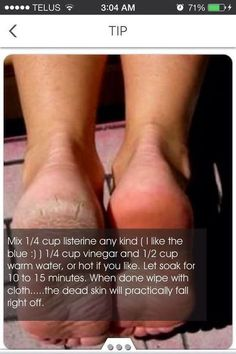How To Get Rid Of Dry/Rough Skin On Your Feet #HealthySkinCareTips Beauty Care, Diy Beauty, Beauty Hacks, Fashion Beauty, Face Beauty, Beauty Skin, Beauty Ideas, Listerine, Home Remedies