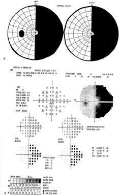 Visual Field Defects - Lesions Affecting the Chiasm - Bitemporal Hemianopia #craniopharyngioma