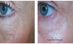 Micro-needling. We have a great new procedure to rejuvenate the skin and improve scars.