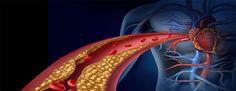 DIABETES E ATEROSCLEROSE | O Diabetes Mellitus afeta mais de 100 milhões de pessoas no mundo todo. Esta doença interfere na metabolização de carboidratos no organismo, sendo... http://blogbr.diabetv.com/diabetes-e-aterosclerose/