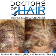 ☀Platelet Rich Plasma (PRP) Hair Therapy . We offer FREE, No Obligation Consultations.  Milwaukee, Wisconsin ☎ (414) 877-8773 Las Vegas, Nevada ☎ (702) 500-0885 . . . . . . #HairLoss #HairGrowth #HairTransplant #HairRestoration #HairReplacement #Alopecia #ThinningHair #PRP #PlateletRichPlasma #Balding #Men #Women #LasVegas #Vegas #Milwaukee #Hair #LongHair #ThickHair #HairDoctor #HairVitamins #BeforeandAfter #HairStyling #NeoGraft #HairStylists #HairClinic #DoctorsofHair #LoveHair