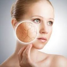 Dry skin problems are very unpleasant to deal with. Especially during winters, your dry skin problems worsen. Here are some Home Remedies for Dry Skin. Home Remedies For Skin, Dry Skin Remedies, Natural Remedies, Dry Sensitive Skin, Oily Skin, Acne Skin, Dry Skin On Face, Face And Body, Flaky Skin