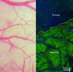 Técnica baseada no efeito Raman inaugura nova era na cirurgia de tumor cerebral ~ PORTAL PCD ON-LINE