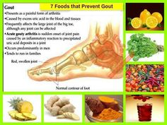 7 Foods that Prevent Gout    Gout: is a disease that is caused by uric acid build-up in the body. Uric acid is formed when the digestive system breaks down purines in our food. A diet low in purines helps by allowing excess uric acid to be flushed out in the urine.    Here are some foods that prevent gout:    1.Pineapple  2.Ginger  3.Turmeric  4.Cherry Juice  5.Hot Peppers  6.Watercress  7.Lemons
