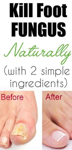 Grab Your Health… How To Get Rid Of Foot Fungus Naturally? Look at this! Grab Your Health… How To Get Rid Of Foot Fungus Naturally? Look at this! Natural Health Remedies, Natural Cures, Natural Healing, Herbal Remedies, Foot Remedies, Toenail Fungus Remedies, Belleza Natural, Feet Care, Natural Medicine