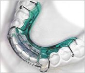 Spring retainers are the only type of orthodontic retainers that can help straighten your teeth.