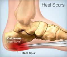 The Five best questions to ask before Heel Spur or Plantar Fasciitis surgery
