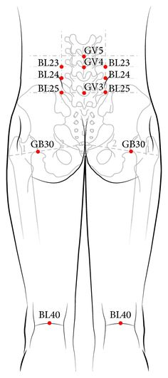 GV3, GV4, and GV5 and both sides of BL23, BL24, BL25, BL40, and GB30 (13 acupuncture points).