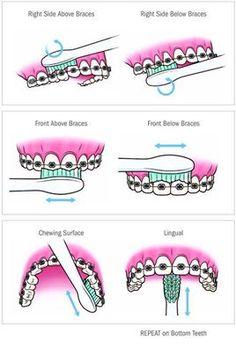 Brushing your teeth with braces #braces #orthodontics #brushing Braces Food, Braces Tips, Dental Braces, Teeth Braces, Dental Care, Kids Braces, Braces Smile, Teeth Dentist, Gold Braces