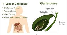 4 Foods That Can Painfully Dissolve Gallstones and Kidney Stones Faster Than Any Medication!!