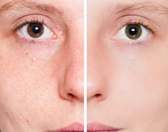 Pros and Cons of Pore Minimizers
