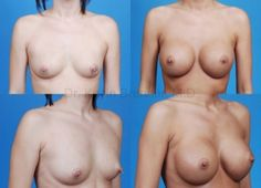 Breast augmentation in Beverly Hills http://www.drkevinbrenner.com/procedures/breast/breast-augmentation by a board certified plastic surgeon, Dr. Kevin Brenner.